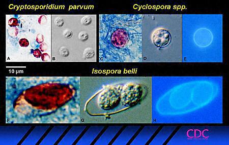 Cryptosporidium Parasite Doenças infeccios...