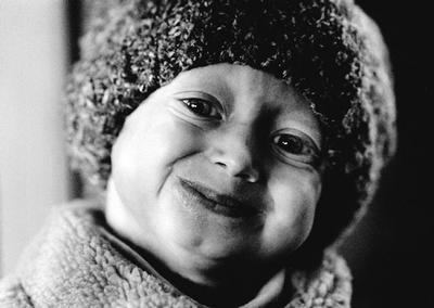 http://www.fiocruz.br/biosseguranca/Bis/infantil/progeria3.jpg