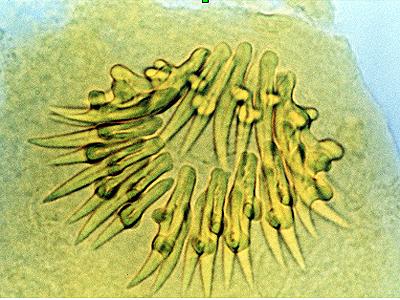 Viermi echinococ, Cancer pancreatic tail